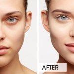 wrinkles-an-dark-circles | skin